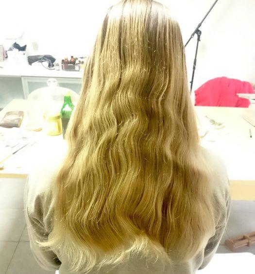 выпадение_волос